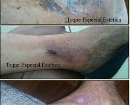 Antes & Depois – Distúrbios Circulatórios